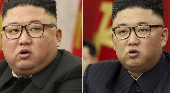 Perbedaan tubuh Kim Jong Un.(Associated Press)